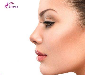13 نکته برای سرعت بخشیدن به زمان بازیابی عمل زیبایی بینی